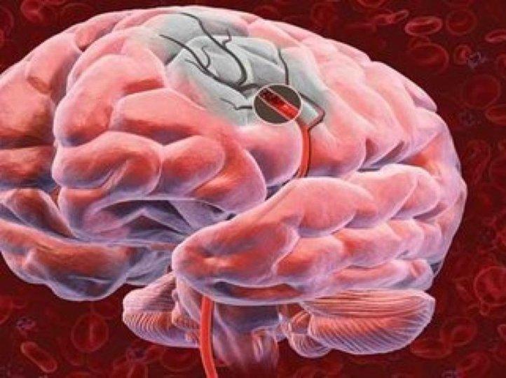 Перечислены три способа по улучшению памяти