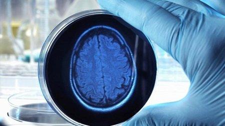 Английские ученые вырастили искусственный мозг изкожи человека